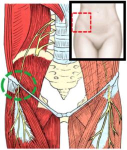 Nerve Entrapment Syndrome